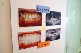 5月24日~26日歯科内覧会を行いました!!