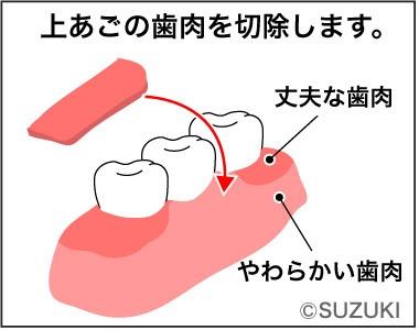 FGG(遊離歯肉移植術)