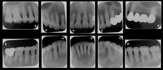 正確な虫歯チェック