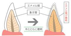 加齢と歯の変色