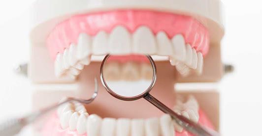 どうして虫歯になるのか