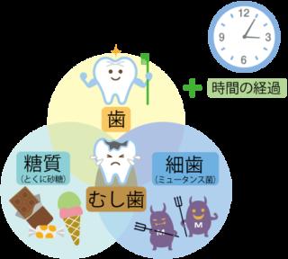 虫歯になりやすい食習慣?