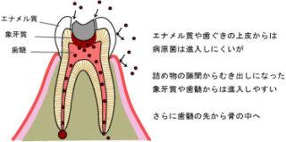 治療が完了している歯のリスク